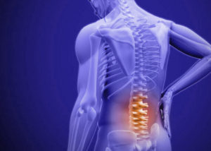 Spine And Pain Specialists In Udaipur
