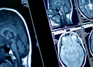 Radiology Services Udaipur