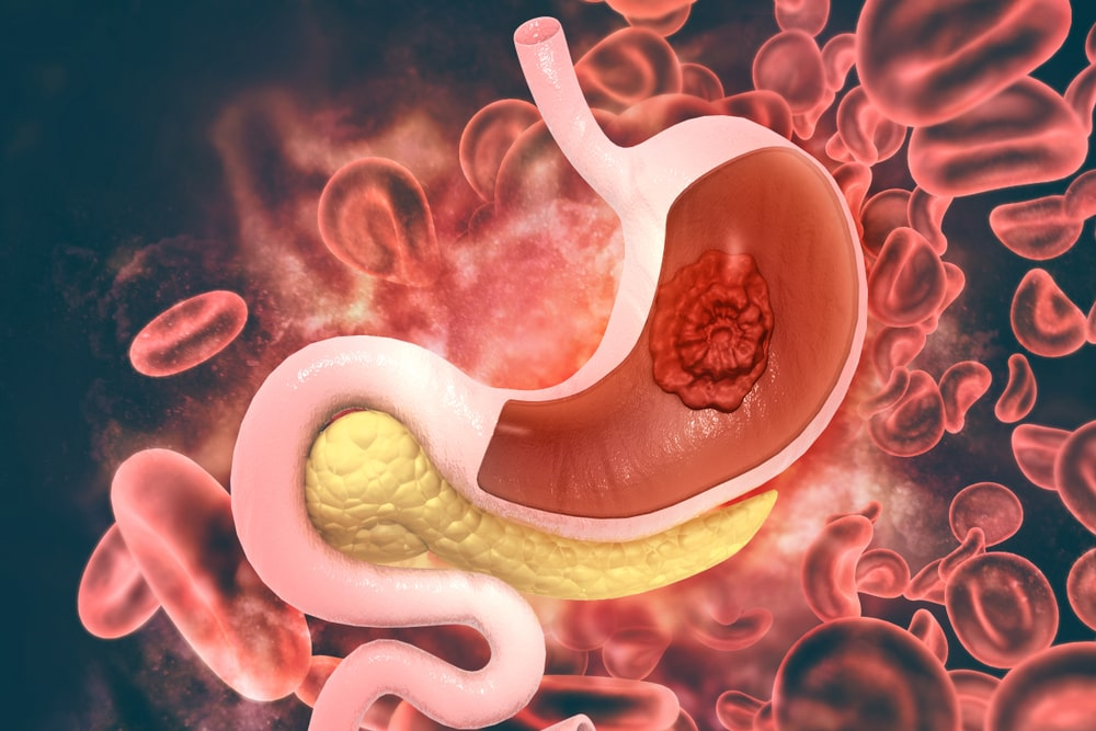 Causes of Gastric Problem-min