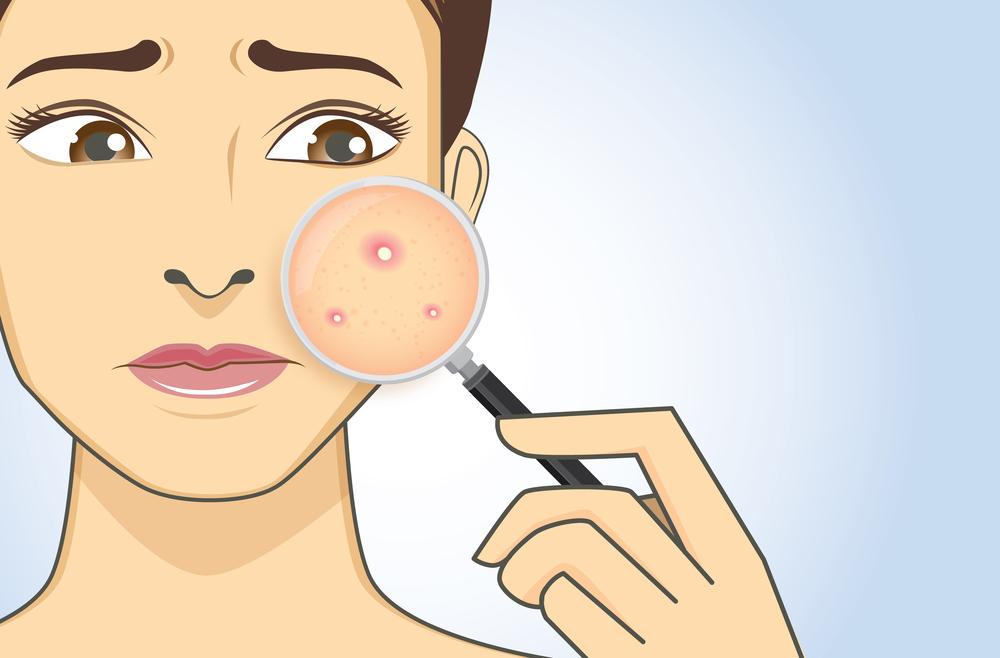 Acne (Pimples)